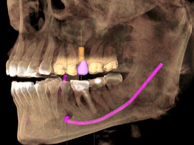 cone beam scanner 3D implant