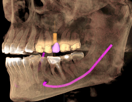 cone beam scanner 3D implant
