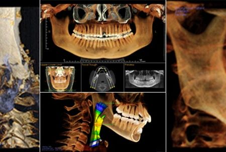 scanner cone-beam dentascan implant