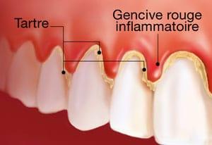 gencive parodontite gingivite