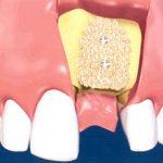 greffe osseuse implant