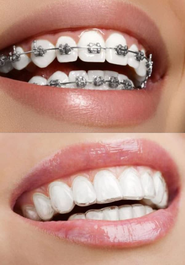 invisalign vs orthodontie